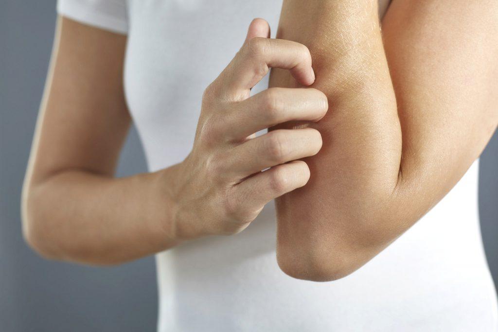 Hautprobleme Neurodermitis