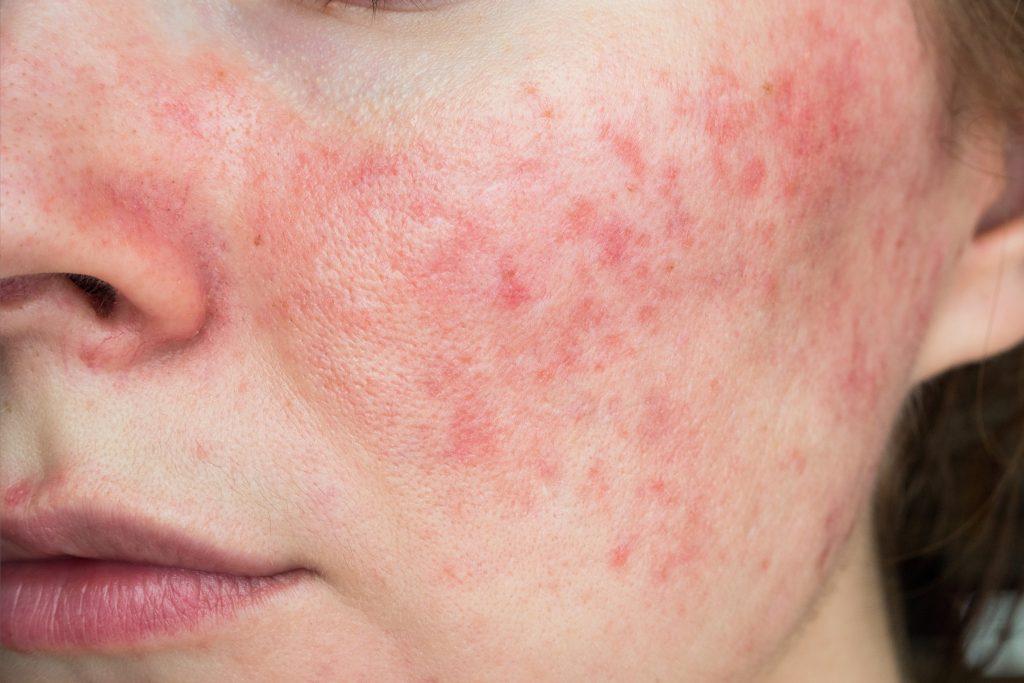 Hautprobleme Rosacea